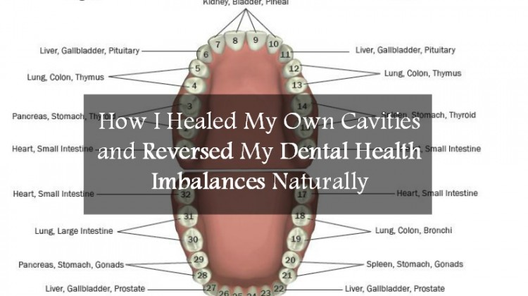 How I Healed My Own Cavities and Reversed My Dental Health Imbalances Naturally