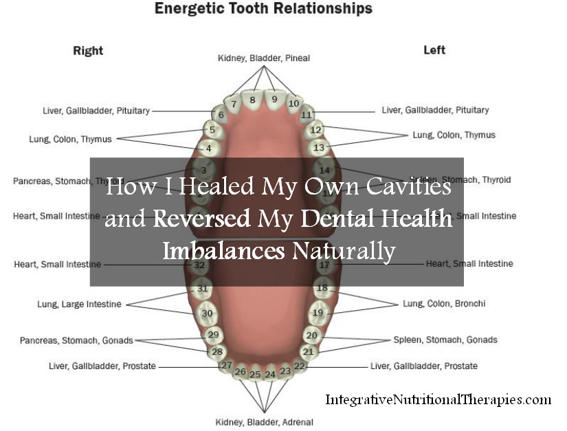 How I healed my own cavities